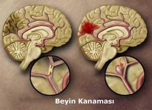beyin_kanamasi